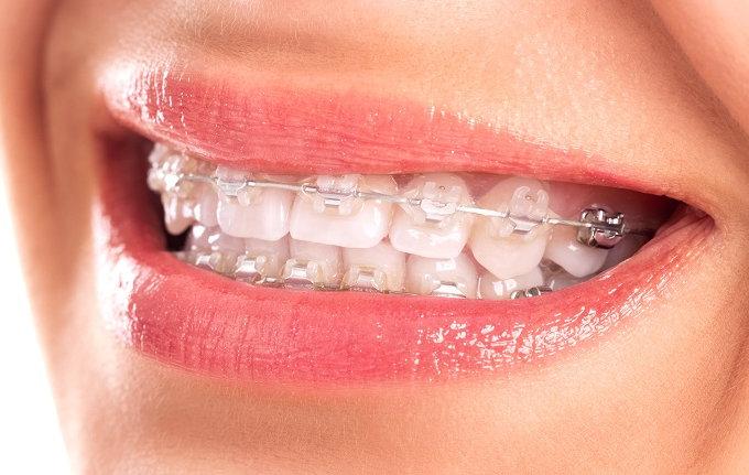 Volver a sonreir para la foto: los implantes son los nuevos favoritos de la estética dental